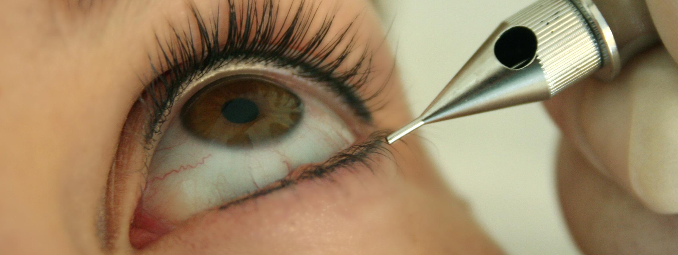 Ausdrucksstarke Augen